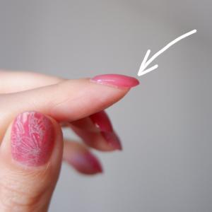 ネイルの先端がボコッとなっているのは自爪の形が悪いから?!