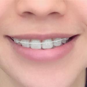 抜歯後の経過