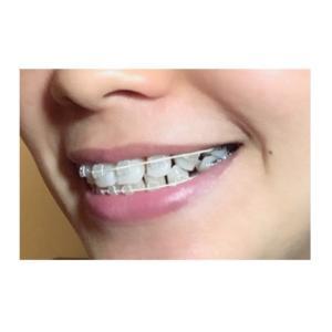 【上顎】298日目【下顎】160日目 すきっ歯が嫌すぎる件