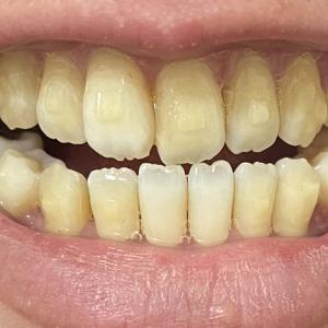 前歯が当たるようになった!