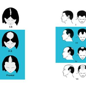 HairMaxの使用は、自分に相応しいのか?