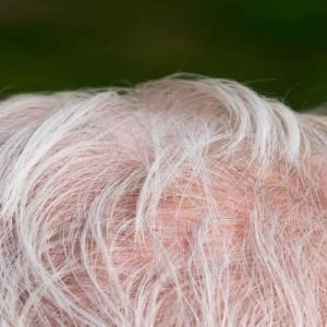 薄毛と白髪の関係