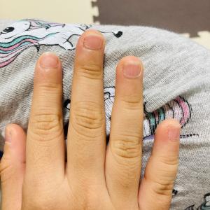 ルンダの爪噛み癖