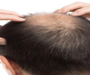 頭皮マッサージで頭皮環境を整えよう!