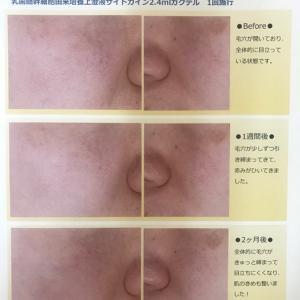 再生医療☆乳歯髄幹細胞培養上澄液サイトカイン療法 ②