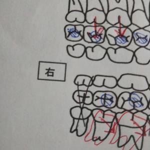 マレーシアとの歯医者の違い②