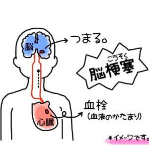 小脳梗塞20-2年経過-