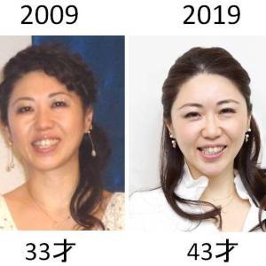10 year challenge!!  _この10年で私がやってきた美容医療を一挙公開_