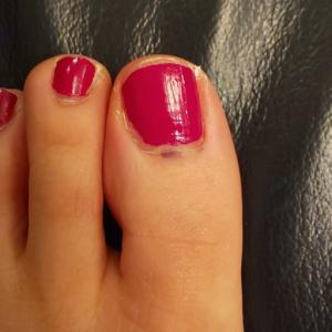 私の足の爪にガンができた??と大騒ぎした件