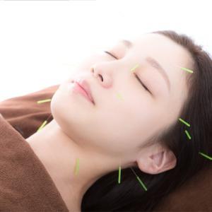 鍼灸師直伝!!美容鍼は顔だけの効果じゃないんです!
