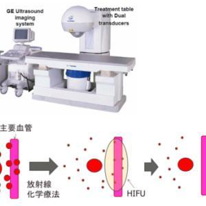 切除不能膵癌-HIFUで4年半生存した例