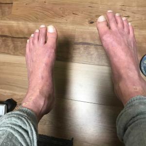 下肢の不安