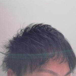 植毛経過ブログ/アスク井上クリニック16カ月