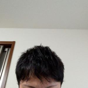 植毛2年弱。伸ばしていた髪を切りました◎