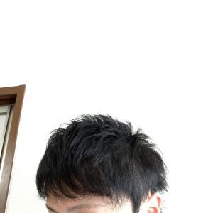 【植毛経過】髪が濡れた状態やセットまでの流れ動画!