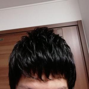 植毛後8カ月弱、髪が伸びてきましたよ。