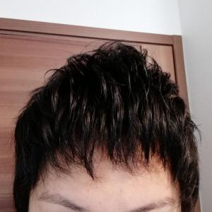 植毛後、メンタルへの好影響。