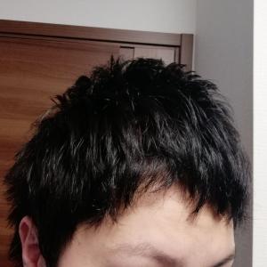 【過去トラウマ写真アリ】植毛後8カ月経過!