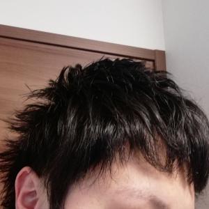 【植毛ブログ】アスク井上クリニック植毛10カ月経過!!