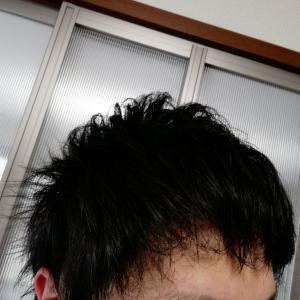 アスク井上クリニック植毛1年経過ブログ!