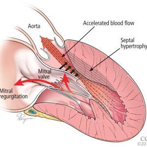 SAM = Systolic Anterior Motion