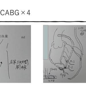 MICS-CABGによるComplete Revasculization