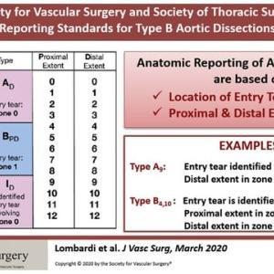 B型大動脈解離における新しい分類、表記