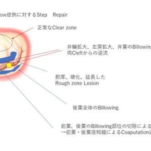 Barlow病に対する僧帽弁形成術 → 僧帽弁のDiminution