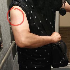 ファイザー社製ワクチン接種後の三角筋の筋肉痛、腫脹