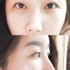 【韓国整形/リアルストーリー】  目と鼻の再手術