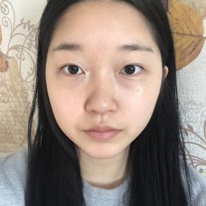 【韓国整形/リアルストーリー】 目の再手術と鼻の手術