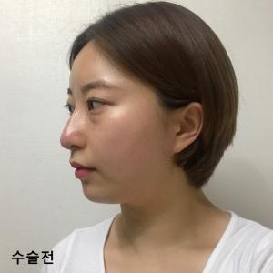【韓国整形/リアルストーリー】  目鼻手術+顔面輪郭手術