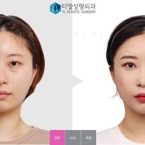 【韓国整形/TL美容整形外科】 目の下脂肪再配置