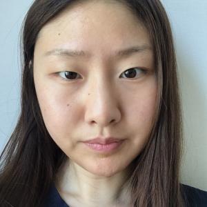 【韓国整形/リアルストーリー】 切開目付き矯正、目尻や目頭、垂れ目切開