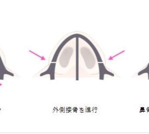 【韓国整形/TL美容整形外科】 シェーディング鼻整