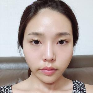 【韓国整形/リアルストーリー】 輪郭3点+目鼻再手術