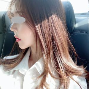 【韓国整形/リアルストーリー】輪郭3点(3D頬骨縮小術、長曲線エラ縮小術、前顎)術症例後記。