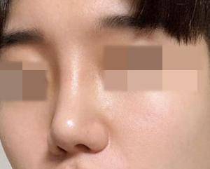 【韓国整形/リアルストーリー】鼻中隔隆鼻術