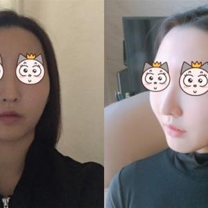 TL整形外科リアルストーリー : かわいい童顔美女へ変身