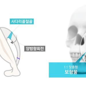 【韓国整形/TL美容整形外科】 複合的頬骨縮小術とは