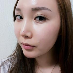 【韓国整形/リアルストーリー】 頬骨手術+鼻再手術