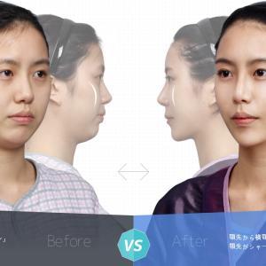 【韓国整形/TL美容整形外科】 V字骨切り術とは