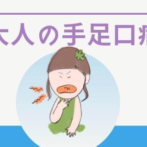 【体験談】大人の手足口病は壮絶で激痛!症状や対処法は?