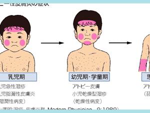 おすぎのリアルなアトピー体験談【青年期】アレルギー負荷試験結果公開