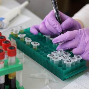 新型コロナウイルスとサイトカインストームの謎