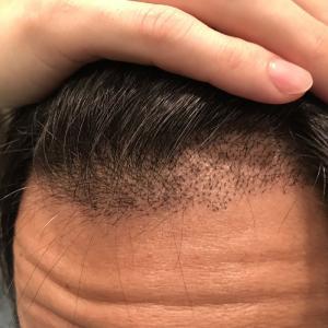 術後20日目! 移植毛はすくすく成長中。そろそろ一時的に脱毛するはずなんですが…