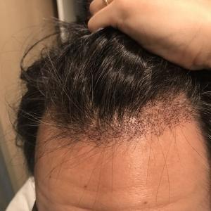 術後23日目! 自毛植毛の植毛部からの初期脱落は未だ発生せず…