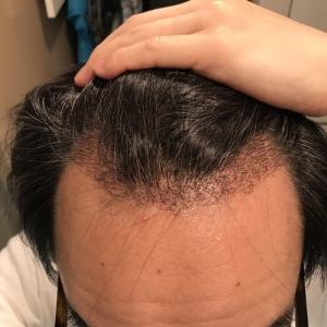術後1か月! 大きな変化はないですが髪の毛が伸びてきました。