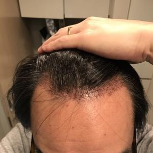 術後25日目! 移植毛の長さにバラつきが出てきました。