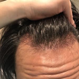 術後27日目! 自毛植毛した毛の成長のばらつきが顕著になってきました。